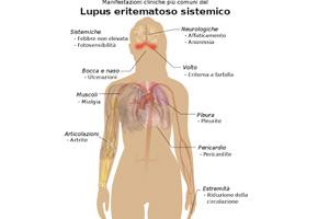 Sintomi_Lupus