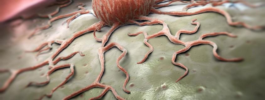 curare tumore alla prostata a romano
