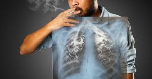 Secondo il dottor Mozzi il fumo non è la sola causa dei tumori ai pomoni