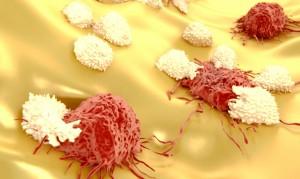 Un sistema immunitario reattivo può contrastare e distruggere le cellule tumorali